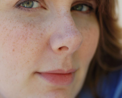 frecklesarelucky.jpg