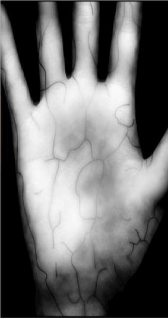 Hand Casey 07 july 2011.JPG